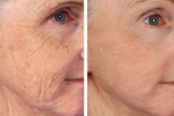 Face rejuvenation