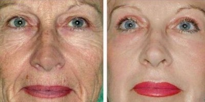 face peeling treatments for wrinkles
