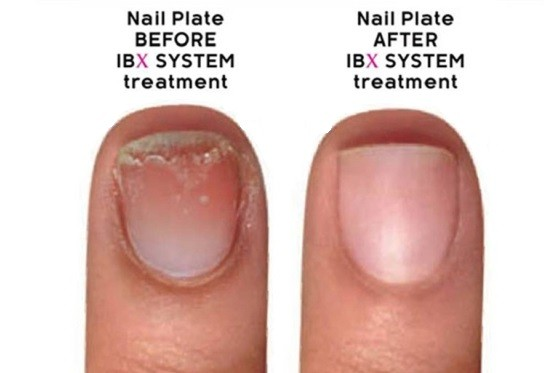 Ibx systém