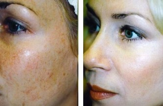 Age spots on face