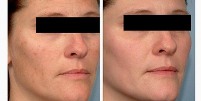 Chemical peel removal of pigmentation spots
