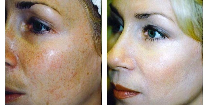 Age spots, Pigmentation and Sun spots treatments in Prague