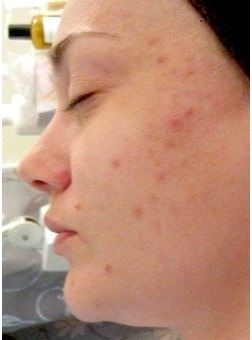 photo chemical peel for acne scars