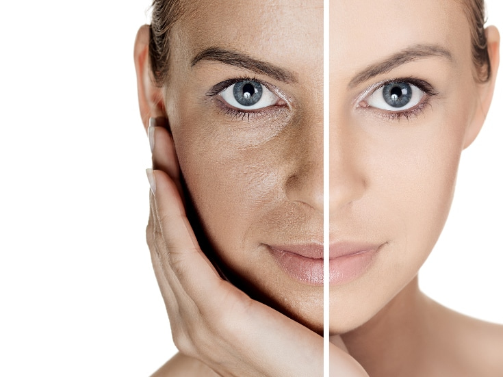 photo age spots, skin pigmentation on face