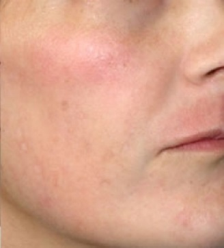 photo best medicine for spots on face