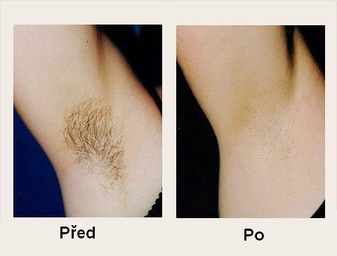 photo permanent armpit hair removal