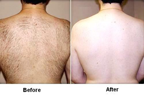 photo back hair removal