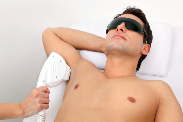 photo laser hair removal for men