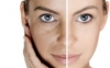 Age spots, Pigmentation and Sun spots treatments in Prague | BEAUTYSHAPE